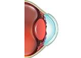Infectious Keratitis