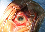 Ophthalmic Surgical Instruments And Ocular Anaesthesia