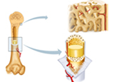 Diagnosis and Management of Bone and Joint Infections