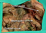 ABDOMEN - Stomach, Duodenum, Portal System and Inferior Mesenteric Artery