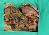 ABDOMEN - Diaphragm, Kidneys and Posterior Abdominal Wall