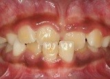 Anterior Crossbite in Primary Dentition