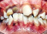 Crossbite Part ll- Anterior Crossbite in Mixed and Permanent Dentition